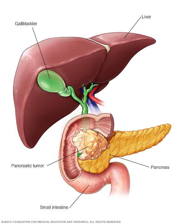 cancer pancreatic ovarian cancer prognosis stage 3