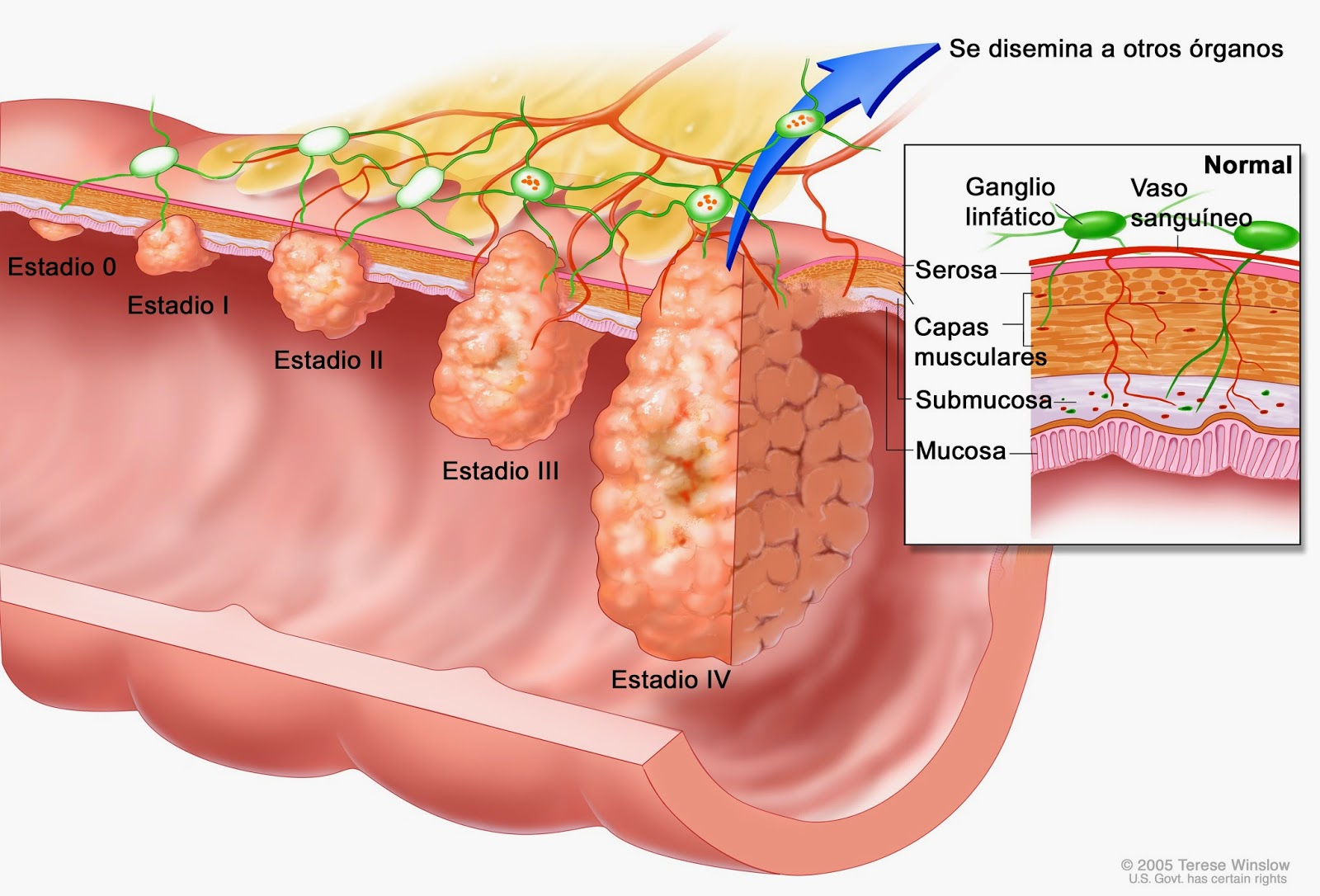 what does a wart virus look like gastric cancer vagotomy