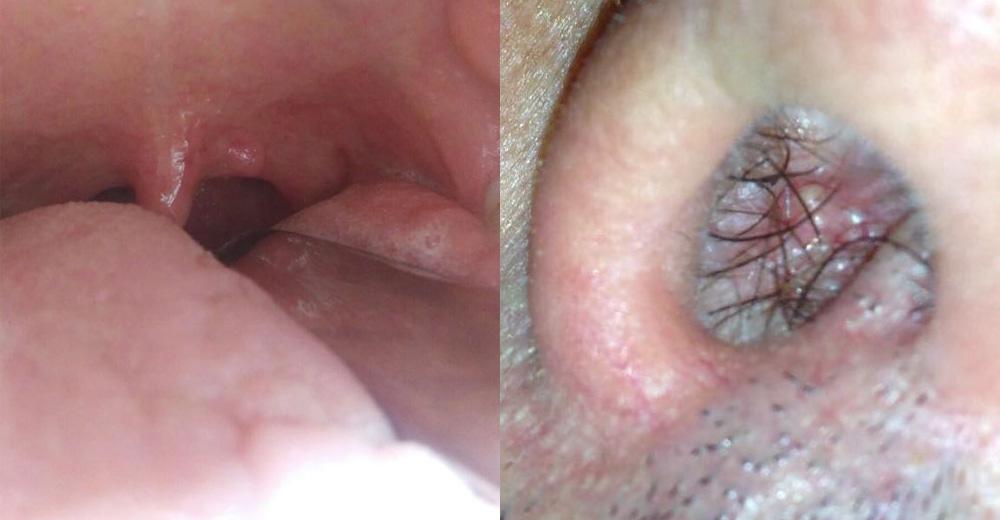 che sintomi da il papilloma virus