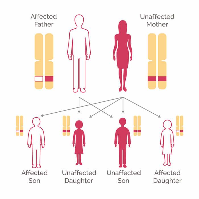 myCancerRiskDNA - evaluare risc cancer ereditar, profil genetic extins | Synevo