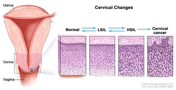 precancerous cells in uterus hpv