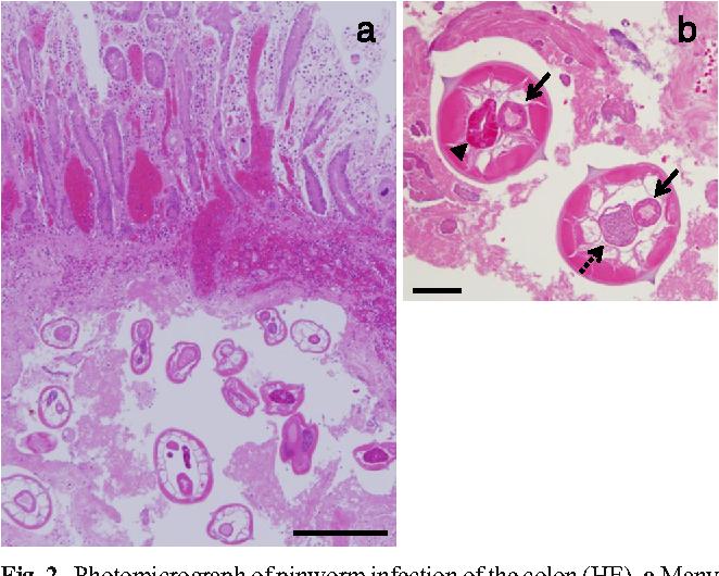 hpv impfung im alter papilloma gola contagio