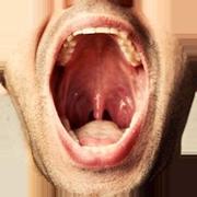 Durerile persistente in gat pot fi un semn precoce al cancerului de laringe   Medlife