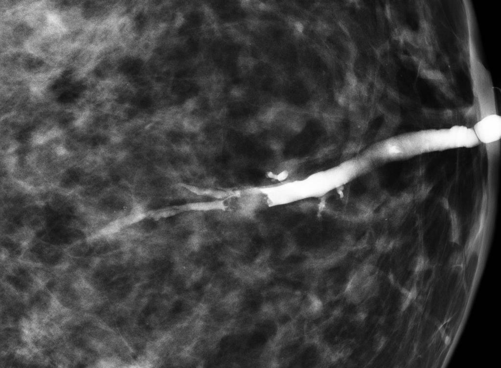 toxoplasmoza in sarcina
