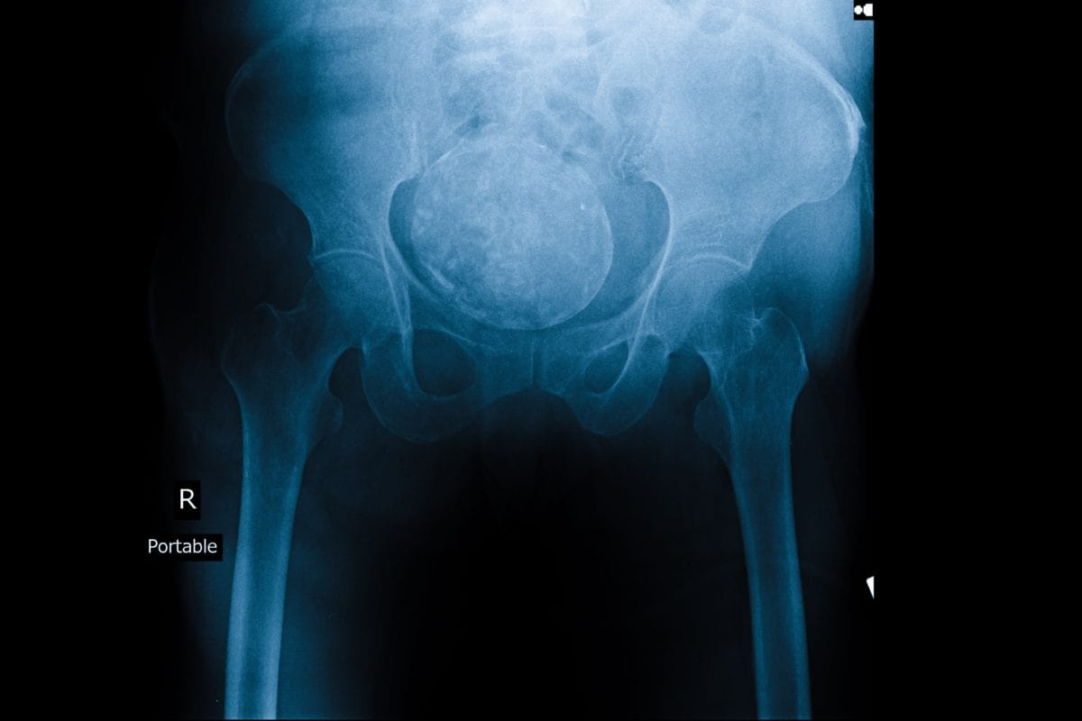 ovarian cancer kill you papilloma lid skin