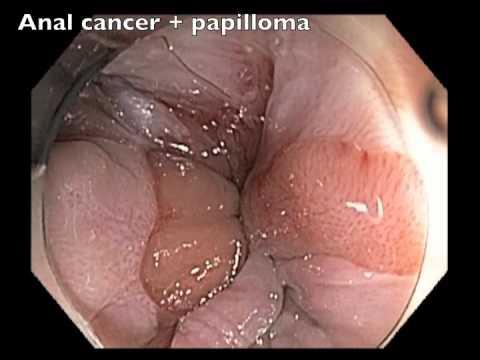 papiloma colonoscopia