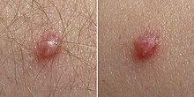 human papillomavirus infection elbow cancer cerebral tratamientos alternativos