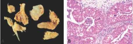 nasal papilloma types