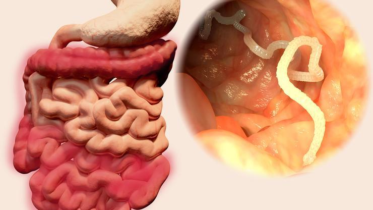 paraziti u crijevima slike