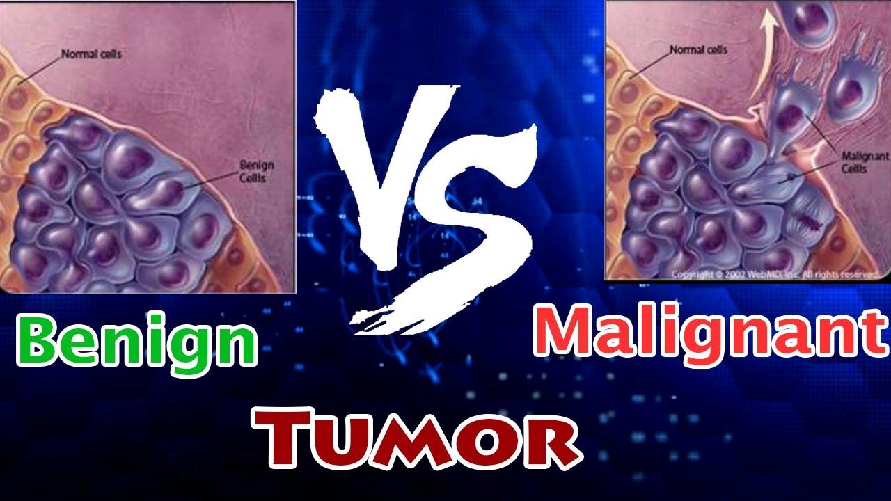 papilloma vescicale e maligno herpes o papiloma humano