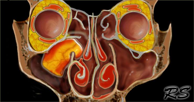 inverted nasal papilloma treatment