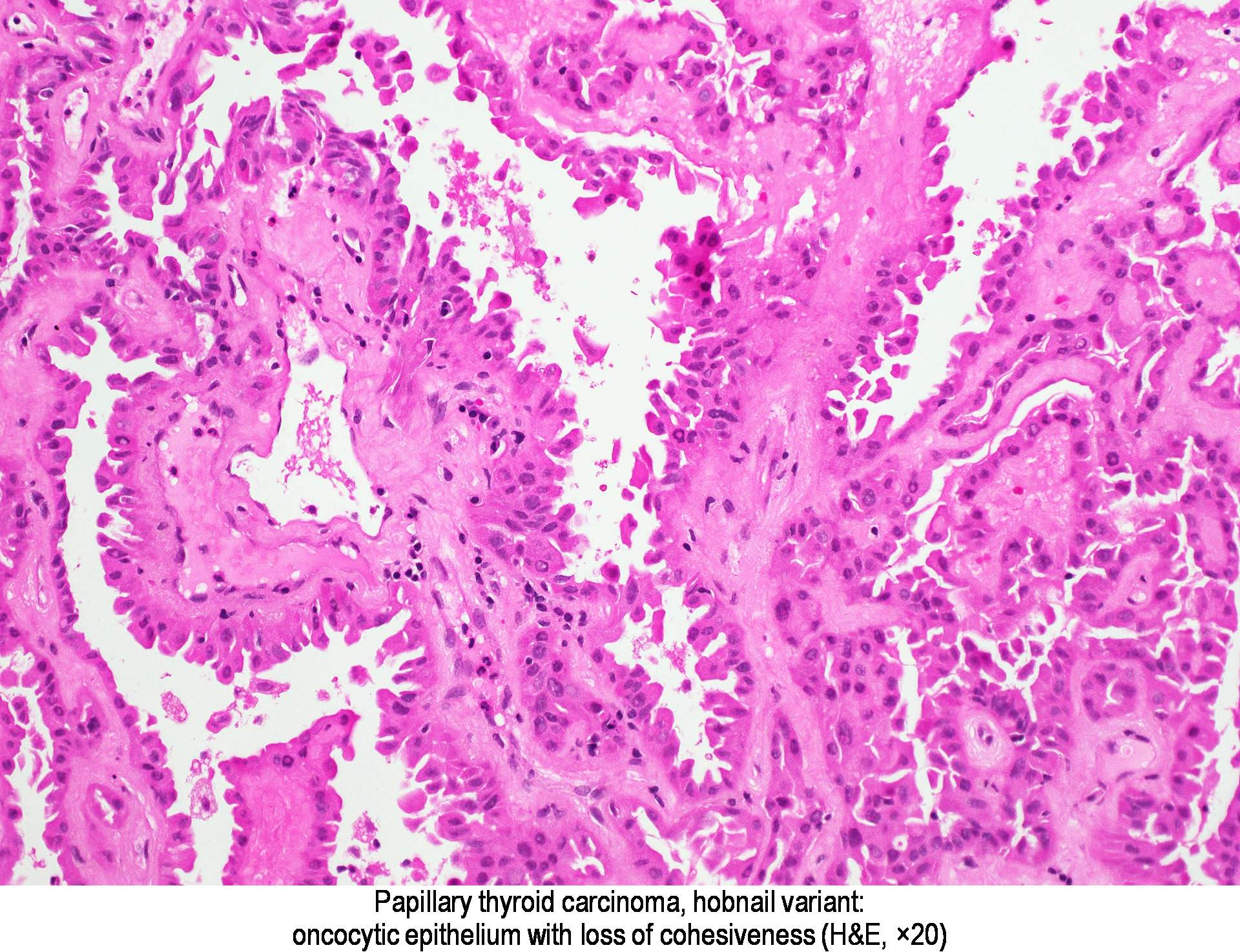 papillary thyroid cancer classical variant