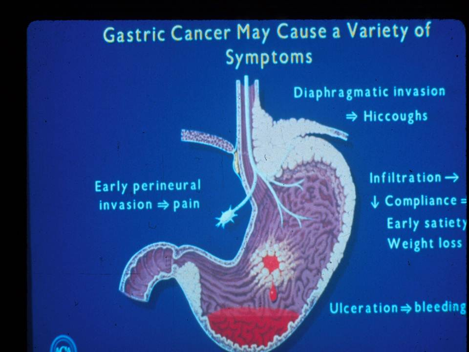 cancer of gastric