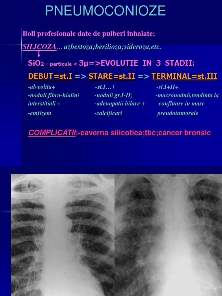 Metastaze ganglionare