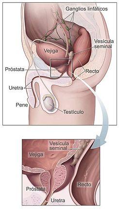 Ceea ce dă ecografie transrectală de prostată