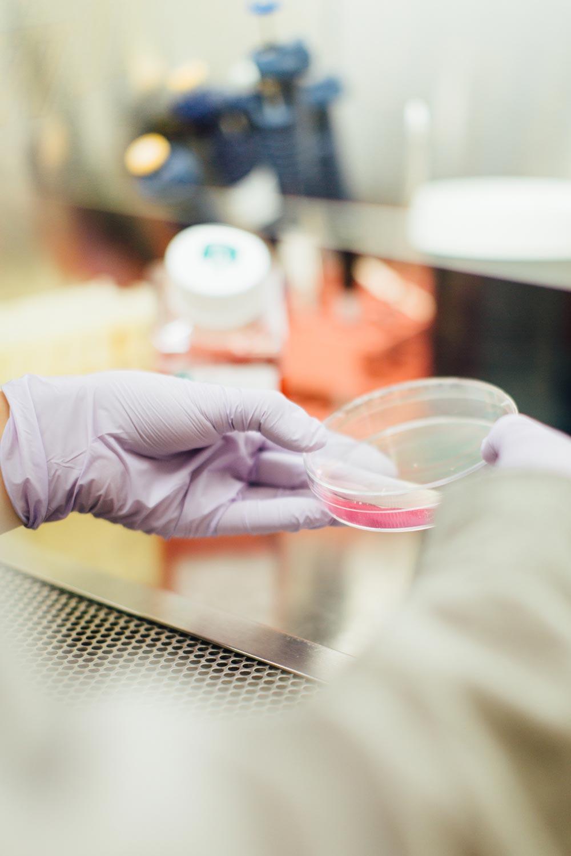 cancer de col uterin analize sange