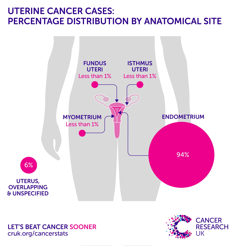 Uterine (Endometrial) Cancer: Prediction Tools   Memorial Sloan Kettering Cancer Center