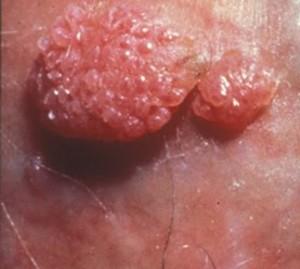 papillomavirus cellules oncogenes
