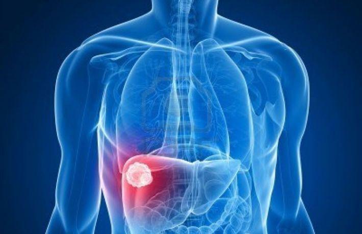 cancer ficat metastaza tratament
