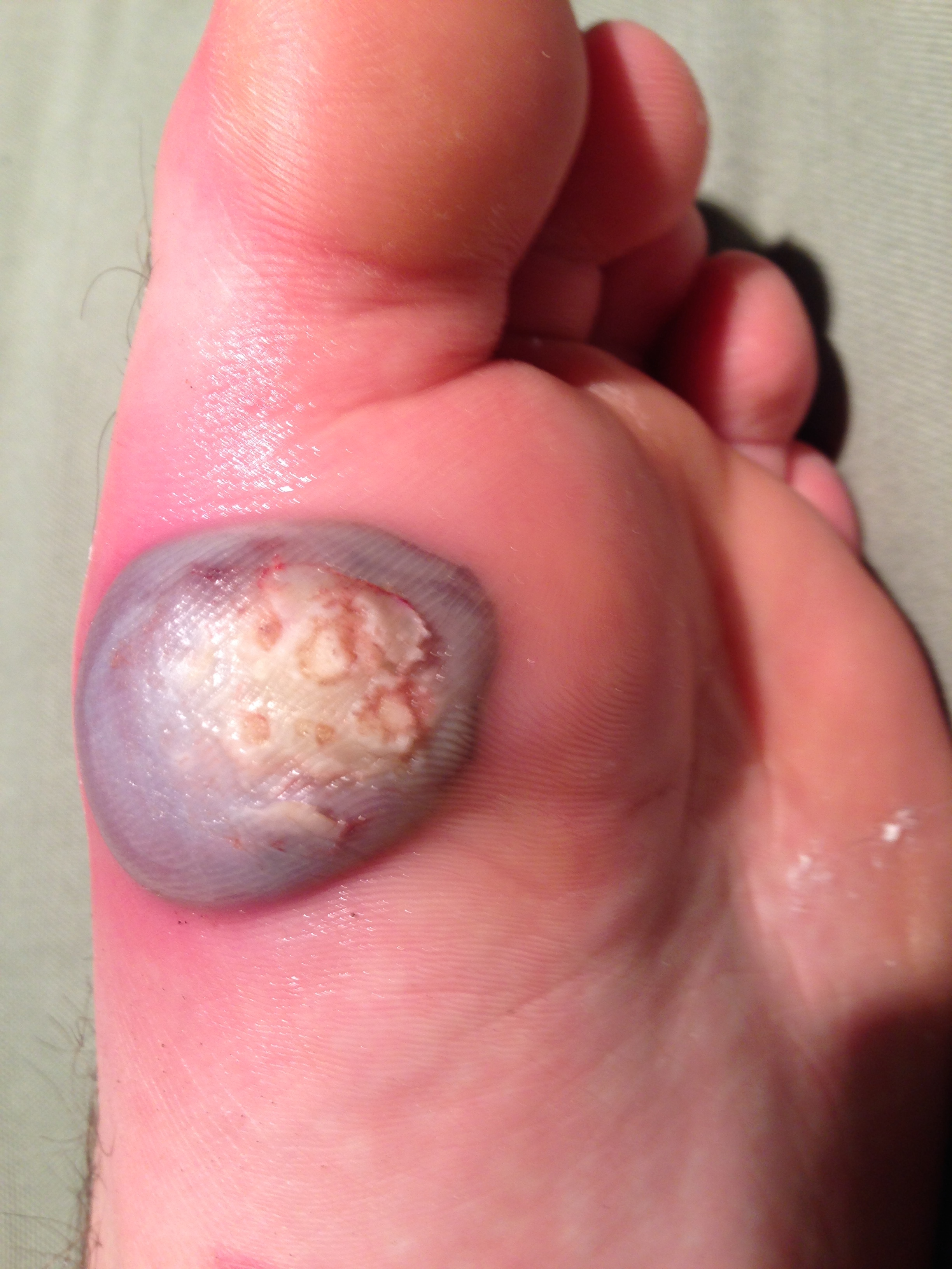 wart on foot or blister