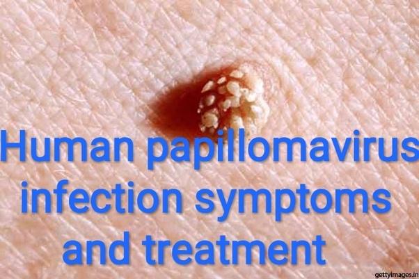 treatment of papillomavirus