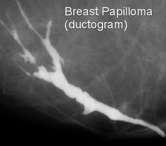 papilloma on breast mri