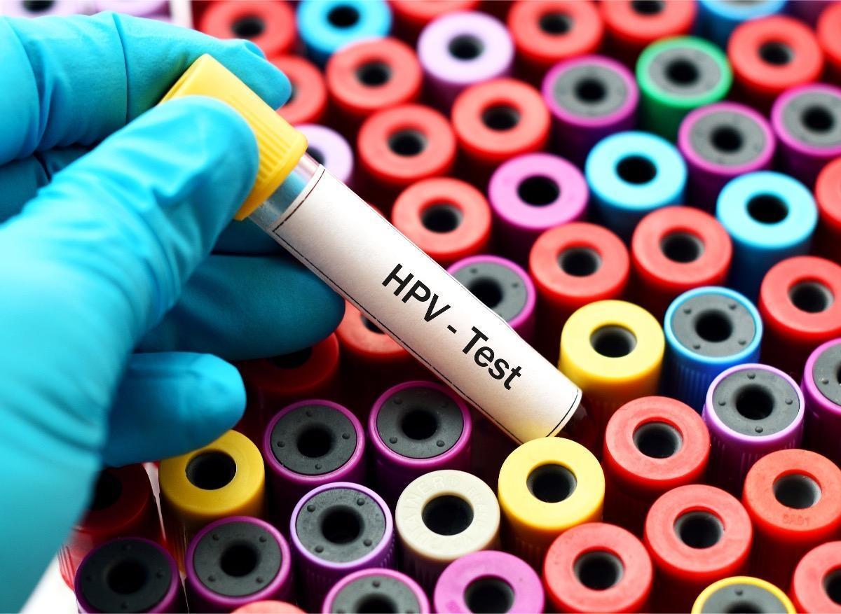 Testul Babes Papanicolau: cum, cand, de ce se face si ce indica rezultatele?