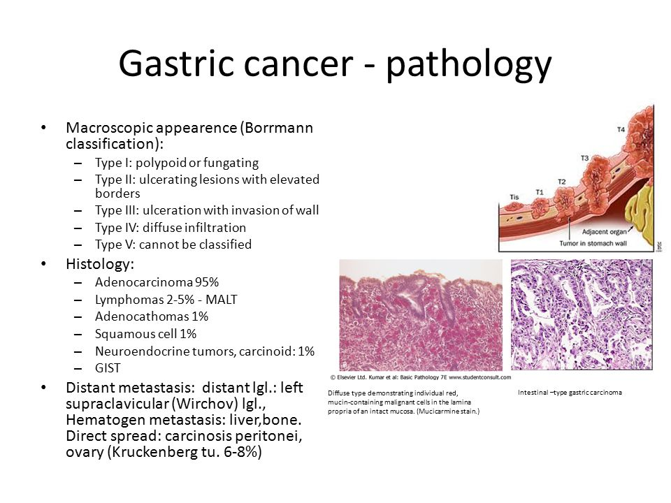 Cancer gastric (cancer de stomac): simptome, diagnostic si tratament