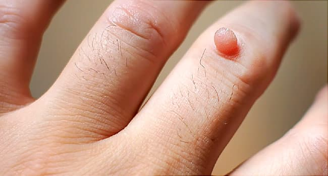 tiny warts on hands pictures