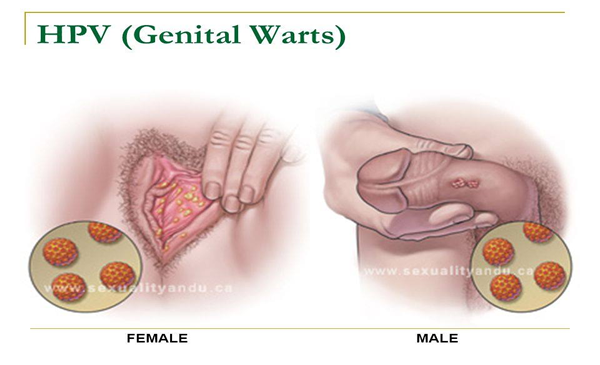 hpv warts female