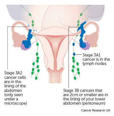 ovarian cancer prognosis stage 3 cancer gastric tnm