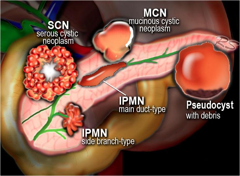 intraductal papillary mucinous neoplasm