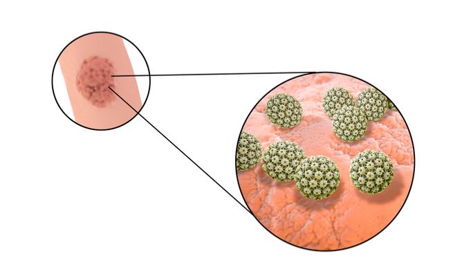 paraziti intestinali si acneea