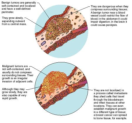 benign cancer cancerous
