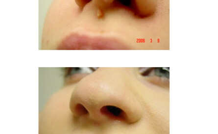 nasal warts treatment