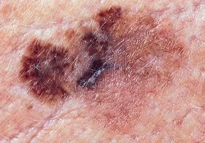 Leziunile cutanate precanceroase si cancerul de piele