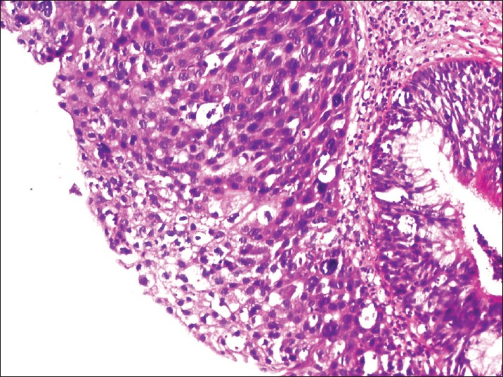 inverted papilloma and squamous cell carcinoma
