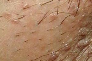 hpv virus kod muskaraca lecenje