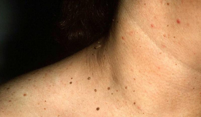 cara menghilangkan papilloma di leher