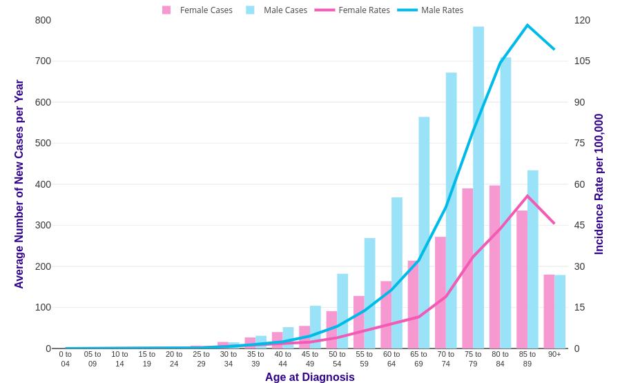gastric cancer us statistics cancer la san la 18 ani