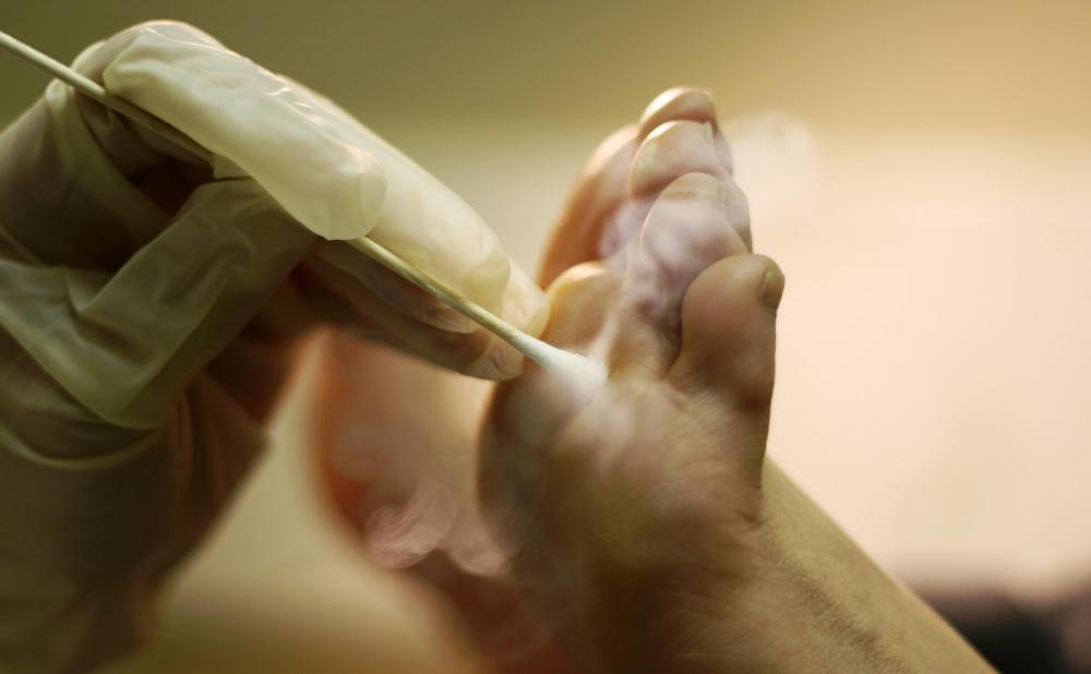 squamous papilloma foot