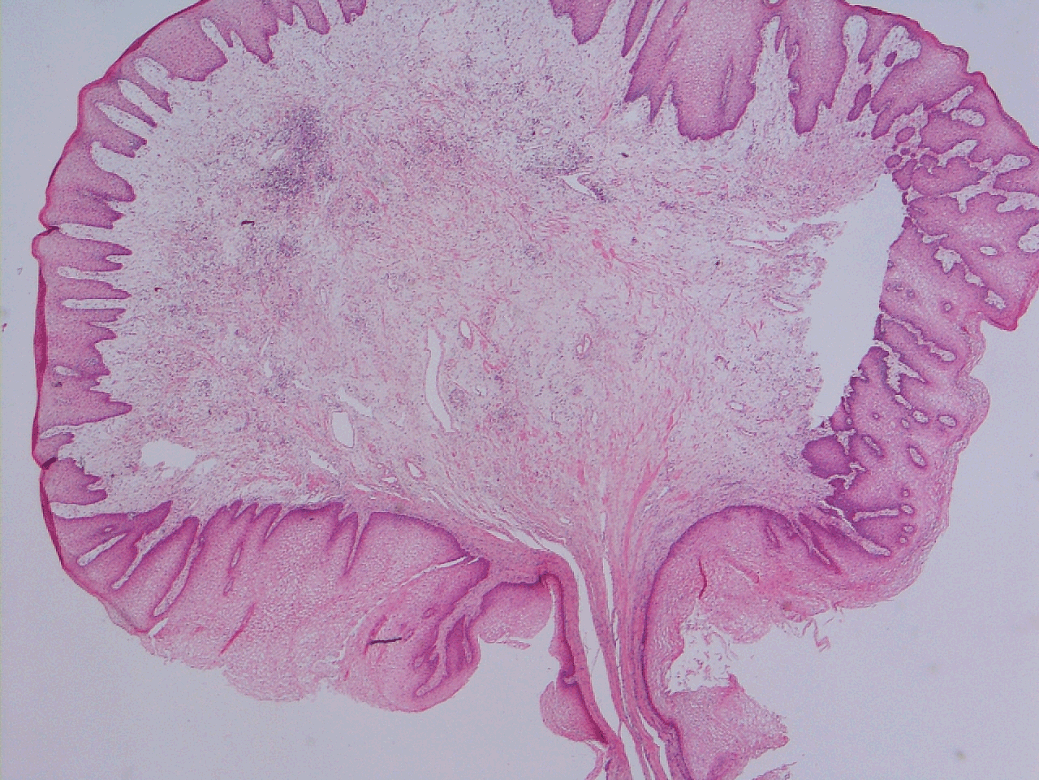 squamous papilloma of cervix hpv and throat cancer