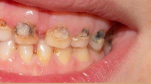 cancer bucal stadii