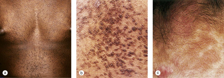 confluent and reticulated papillomatosis and acanthosis nigricans