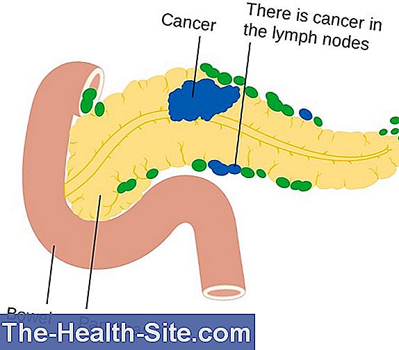 cancerul pancreasului endocrin