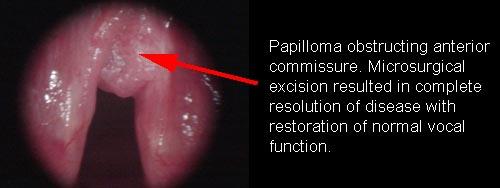larynx squamous papilloma
