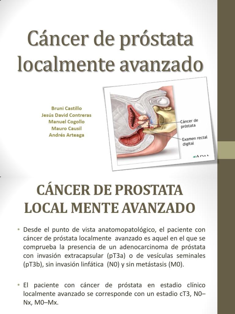 urethral papilloma pathology outlines