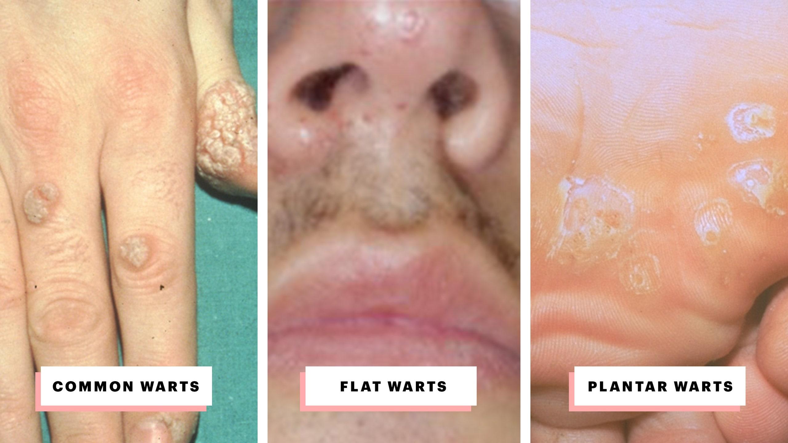 hpv after wart removal cura detoxifiere o saptamana