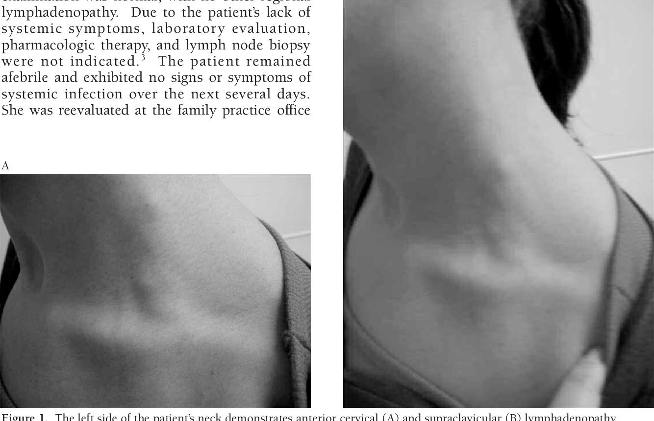 human papillomavirus lymphadenopathy