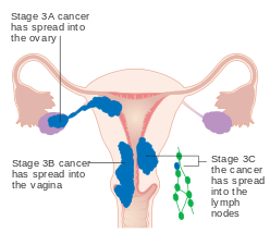 peritoneal cancer endometriosis hpv and throat and mouth cancer